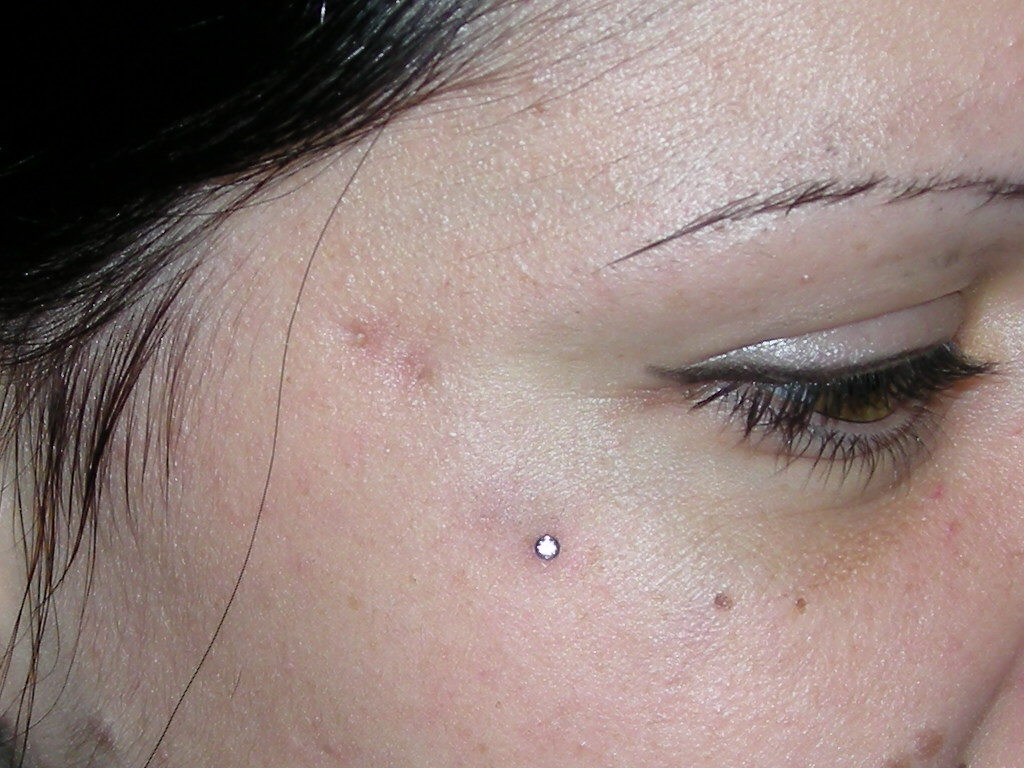 Piercings Surface et implants dermiques